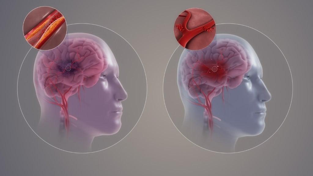 Image result for stroke